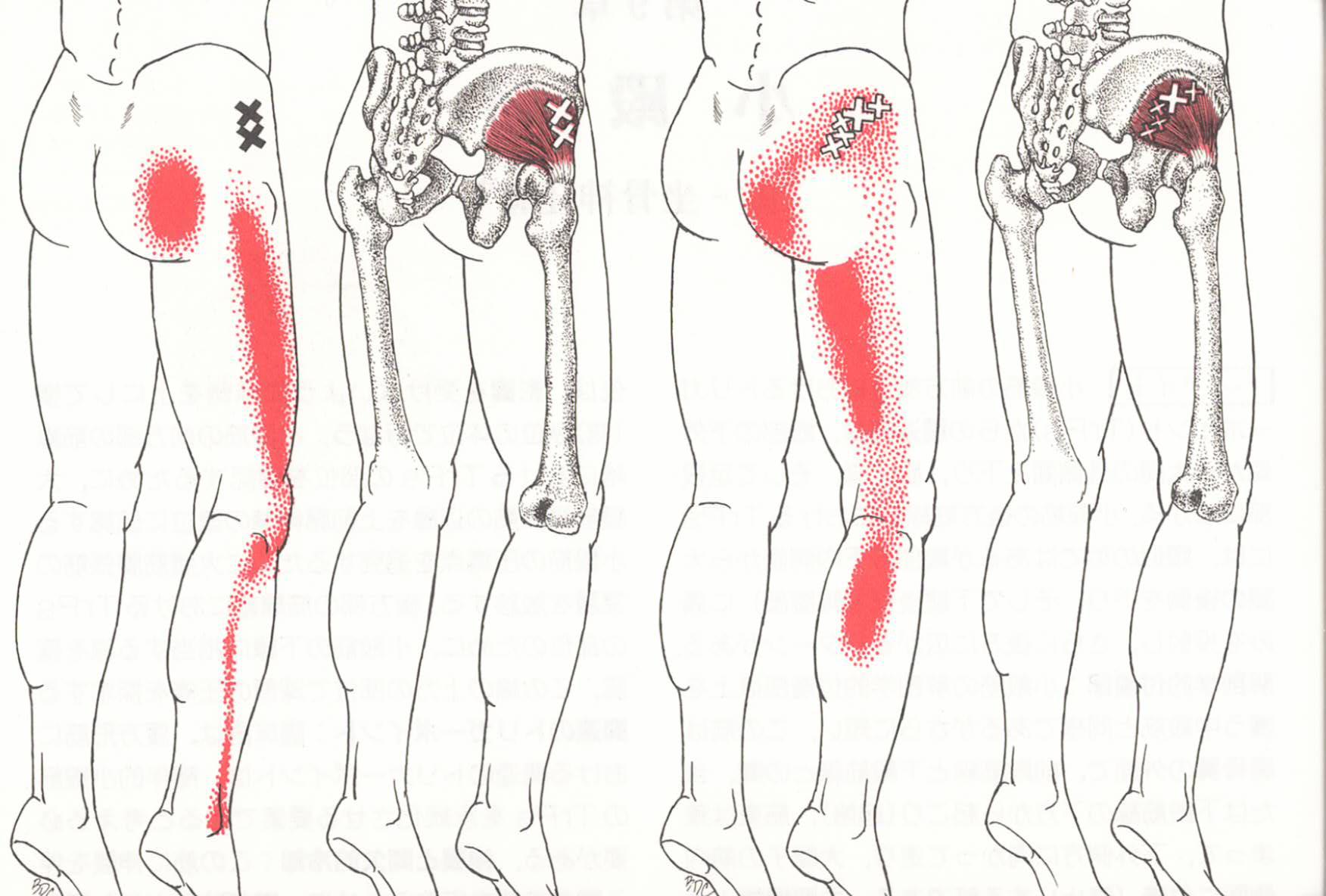 福岡で坐骨神経痛の治療を受けるなら「ラムサ福岡」|治療法を学ぶなら「ウェルネス福岡」で!